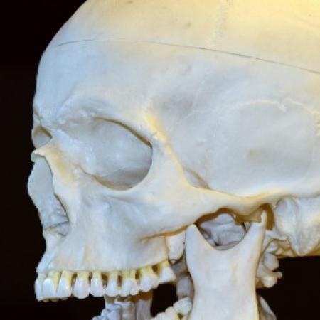 Traumatisme cranien : à quoi devez-vous faire face en cas d'accident à Arles